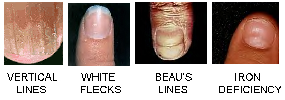 nails-and-health.jpg